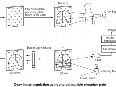 computed_radiography